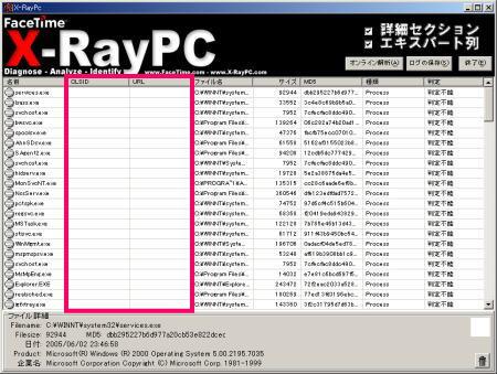 Xray4.jpg